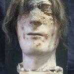 Masque mortuaire d'un étudiant vétérinaire, décédé en 1836 après l'avoir contractée en se coupant lors d'une autopsie de cheval — Musée Fragonard EnvA